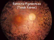 Retinitis Pigmentoza (Tavuk Karası)