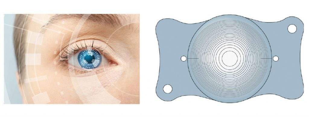 Akıllı Lens mi, lazer mi