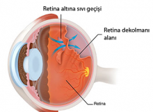 Retina Dekolmanı