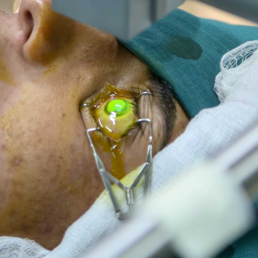 Keratokonusta cross linking tedavisi