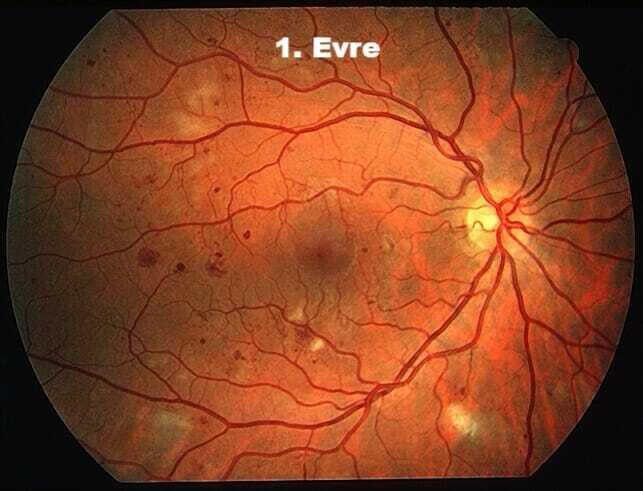 Diyabetik Göz 1. Evre