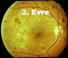 Diyabet ve Göz