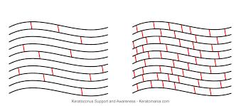Keratokonus ve Korneal Cross Linking (Çapraz Bağlama) Tedavisi