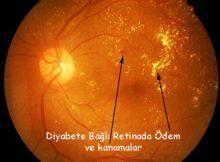 Şeker Hastalığı (Diyabet) ve Göz