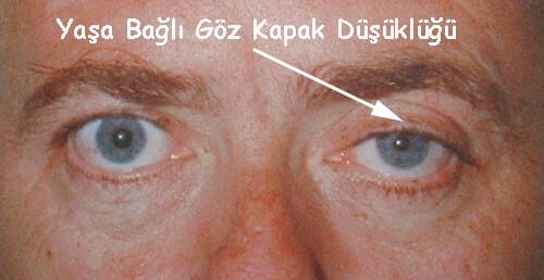 Yaşa Bağlı Göz Kapak Düşüklüğü (senil pitozis)