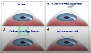 PRK Excimer Lazer