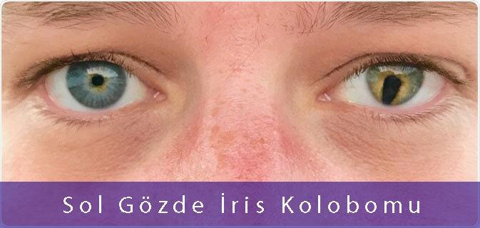 iris-kolobomu