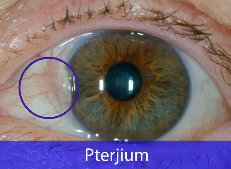 Pterjium