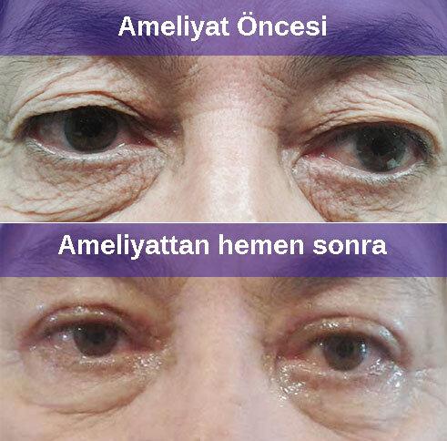 Blefaroplasti (göz kapak estetiği ameliyatı)