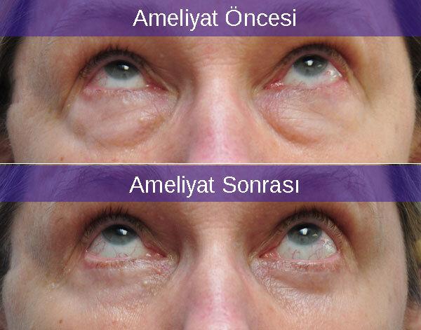 Alt Kapak Blefaroplasti ve Göz Kapak Estetiği