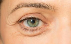 Göz Altı Torbası