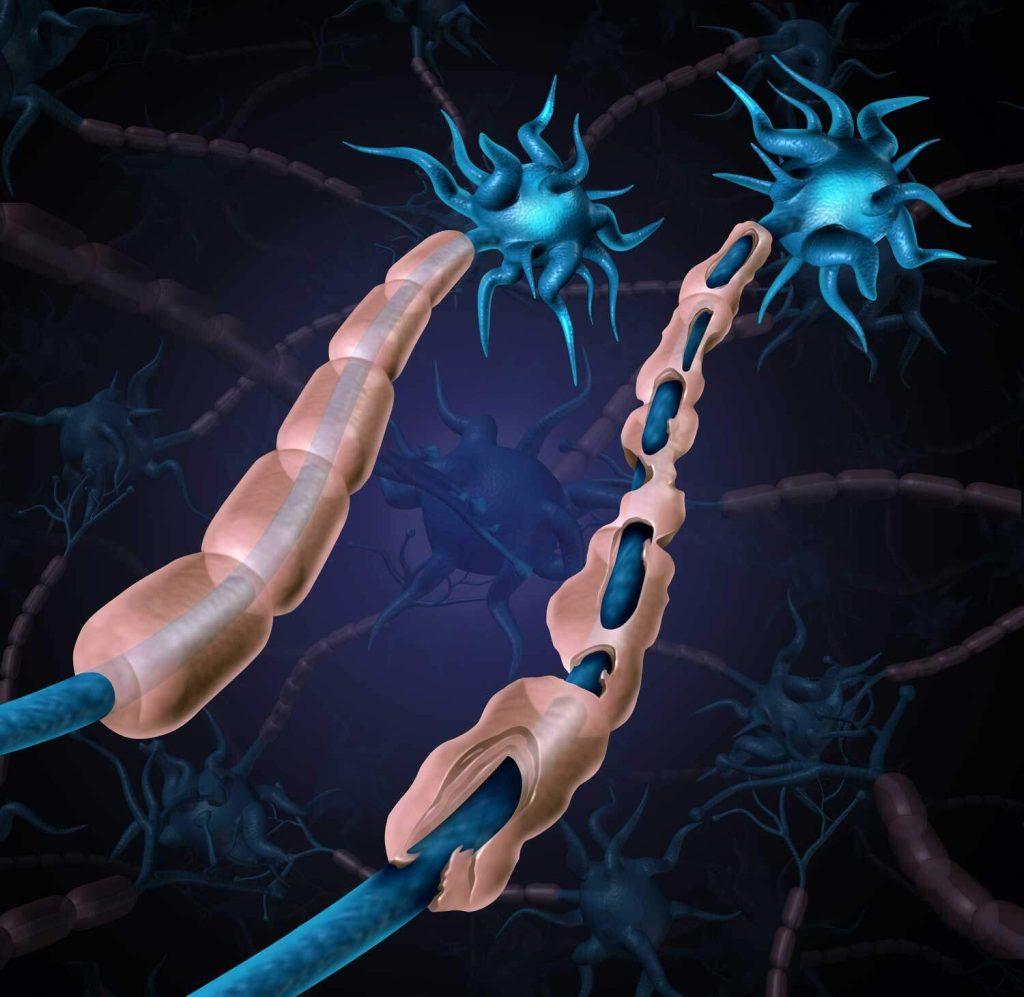 MS Hastalığı (Multiple Skleroz)