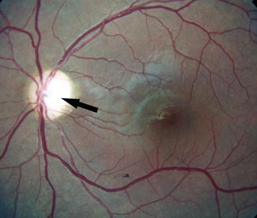 optik atrofi (travmatik optik nöropati)