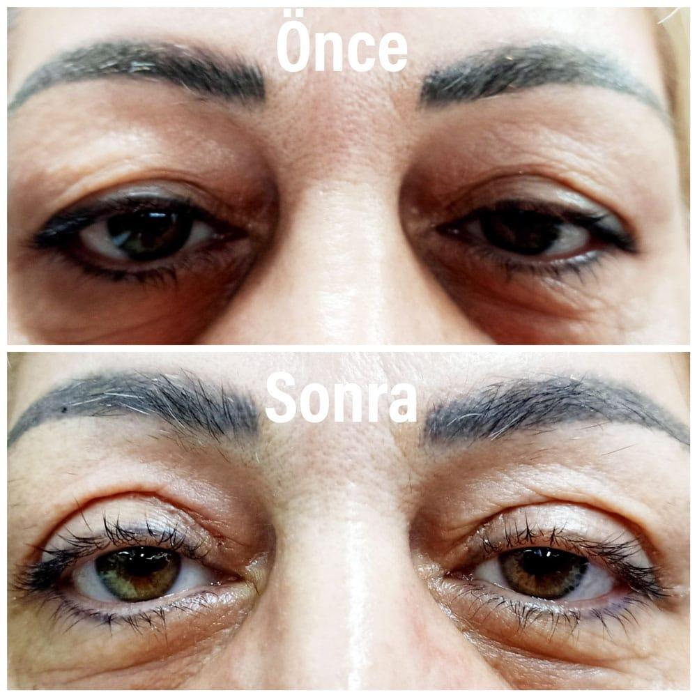 blefaroplasti ameliyatı (göz kapak estetiği)