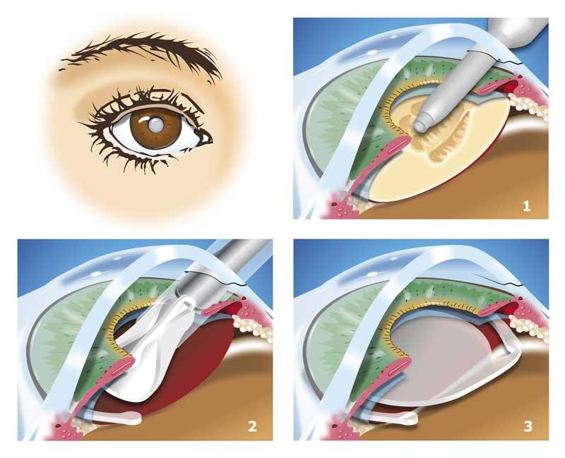 katarakt ameliyatı