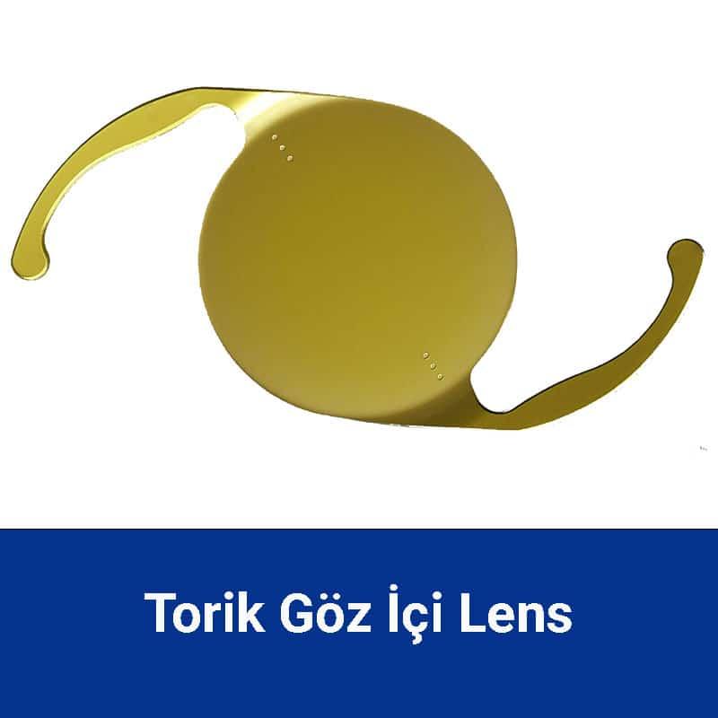 torik lens (astigmatlı lens)