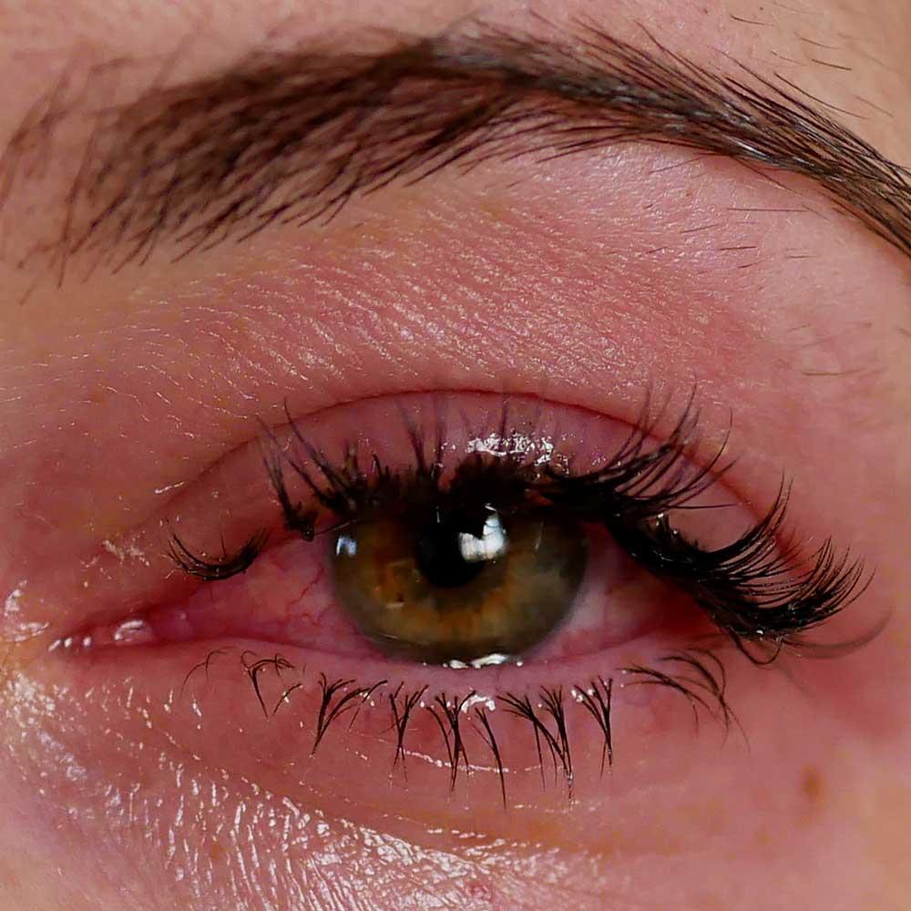 Göz Sulanması (Göz Yaşarması)